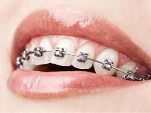 Ortodoncia para niños ronda Malaga