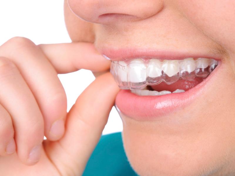 ortodoncia invisible en málaga y ronda