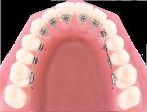 Ortodoncia ronda y malaga